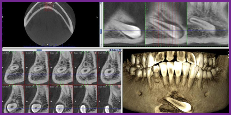 رادیولوژی دهان فک و صورت