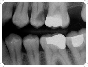 خطر رادیولوژی دهان فک و صورت