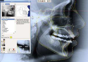 مقایسه سی تی اسکن دندان و رادیوگرافی