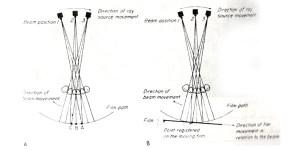 شکل و ضخامت لایه ی تصویر در رادیوگرافی پانورامیک
