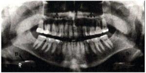 مفاهیم آناتومی طبیعی در رادیوگرافی پانورامیک (قسمت اول)