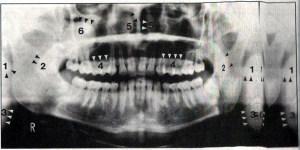 مفاهیم آناتومی طبیعی در رادیوگرافی پانورامیک (قسمت دوم)