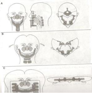 خطاهای مربوط به مراحل انجام تکنیک پانورامیک (قسمت اول)