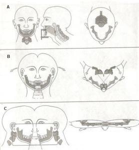 خطاهای مربوط به مراحل انجام تکنیک پانورامیک (قسمت سوم)