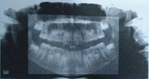 سی تی اسکن دندان