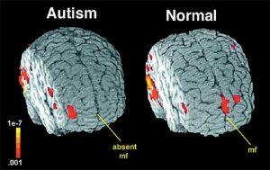 اسکن مغز و تشخیص اوتیسم