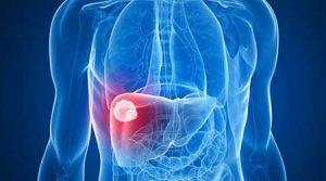 تشخیص کبد چرب با رادیولوژی
