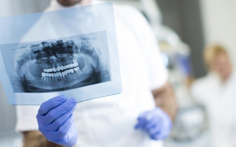 سه رادیوگرافی سه بعدی دندان