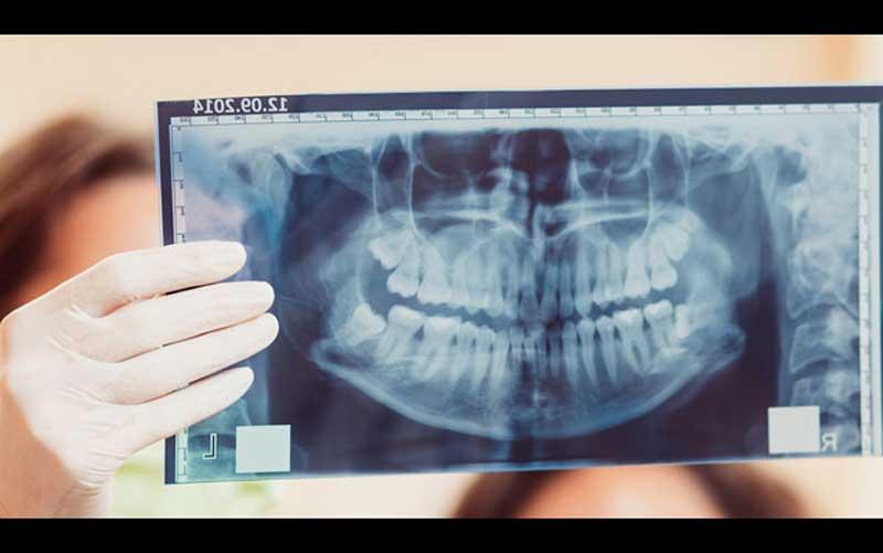 تشخیص سرطان های دهان