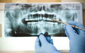 پوسیدگی دندان و اشعه ایکس
