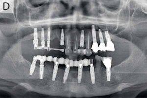 رادیوگرافی پانورامیک ایمپلنت دندان